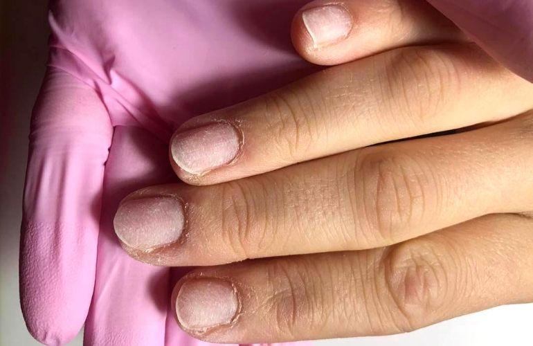 paznokcie przed metamorfozą