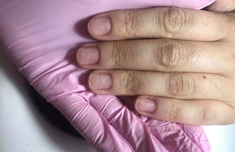 paznokcie przed zabiegiem, dłoń klientki salonu kosmetycznego